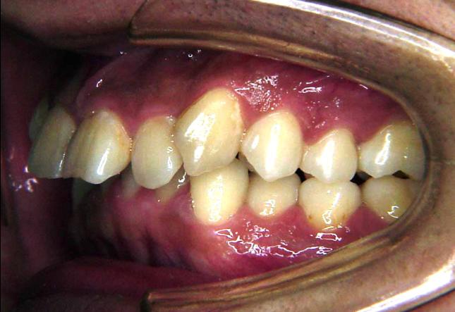 上顎前突症例 治療前