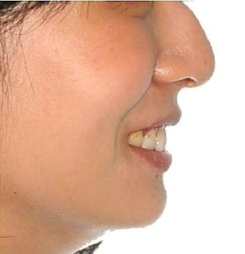 口元と咬み合わせの変化(横顔)その1 治療後