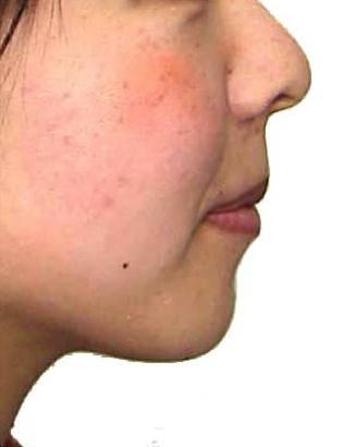 口元と咬み合わせの変化(横顔)その2 治療後
