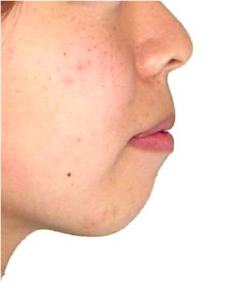 口元と咬み合わせの変化(横顔)その2 治療前