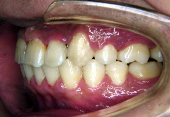上顎前突症例 治療後