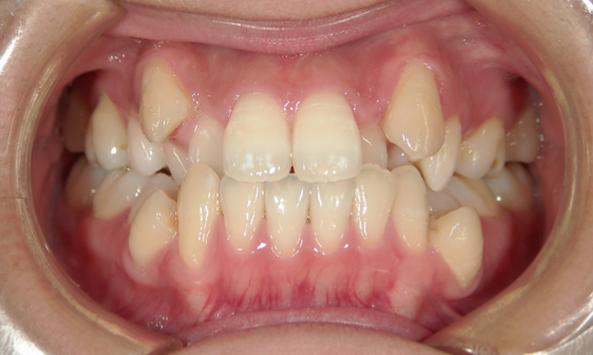 叢生(八重歯)症例 治療前
