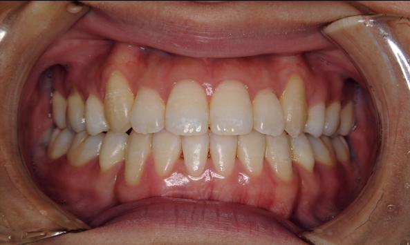 叢生(八重歯)症例 治療後