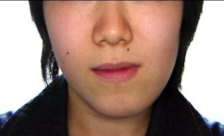 非対称(外科的矯正治療)症例 治療前
