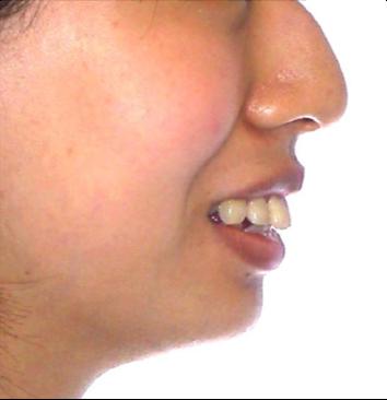 口元と咬み合わせの変化(横顔)その1 治療前