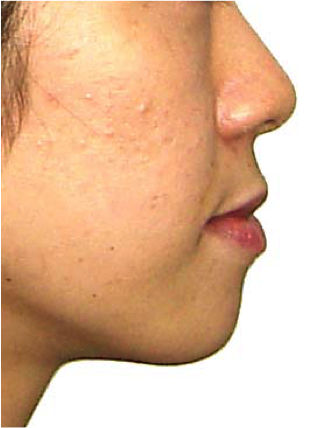 口元と咬み合わせの変化(横顔)その3 治療前