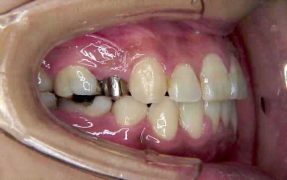 口元と咬み合わせの変化(横顔)その3 治療後